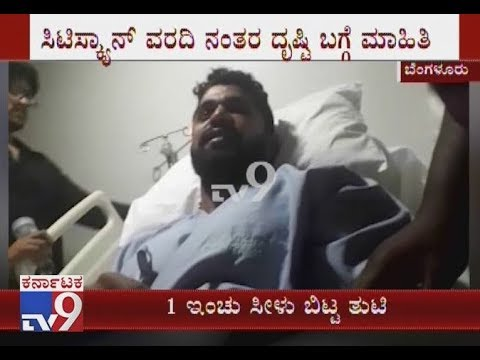 Duniya Vijay's Victim Maruthi Gowda Has Sustained Several Facial Injuries