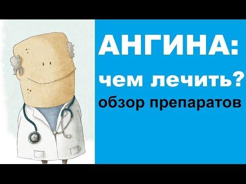 Чем лечить ангину (тонзиллит) - обзор лекарственных препаратов