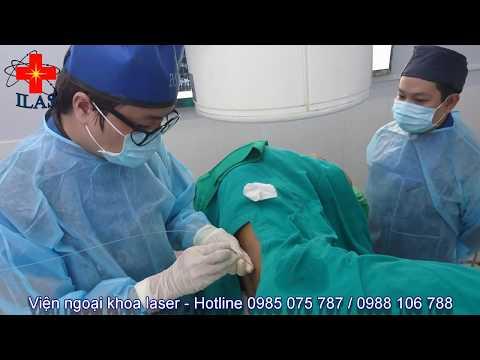 Điều trị thoát vị đĩa đệm cột sống thắt lưng bằng Laser