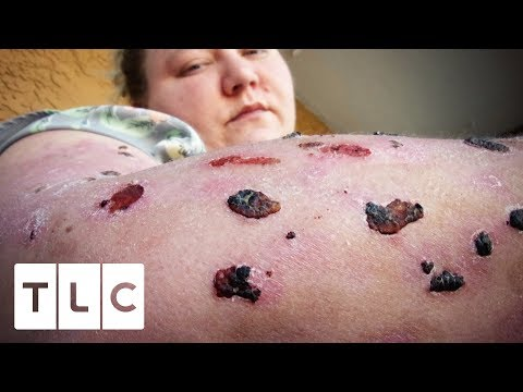 Living With The World's Most Painful Disease | Body Bizarre