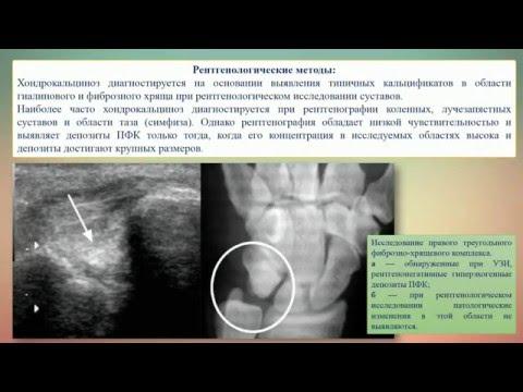 Болезнь депонирования кристаллов пирофосфата кальция (Пирофасфатная артропатия)