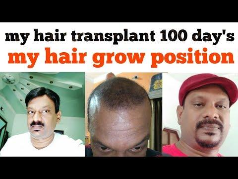 My hair transplant 100 days my hair grow position._A plasztikai sebészet kulisszatitkai. A legmodernebb eljárások, és orvosi hibák. Szilikon völgy