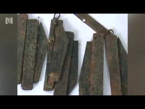 Indian doctors remove 40 knives from man's stomach