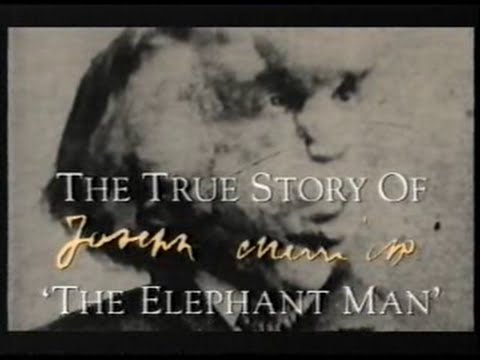 the skull of joseph merrick often known as the elephant man there
