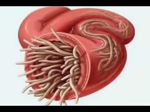 """Parasite Cleanse  – """"What's eating you?"""""""