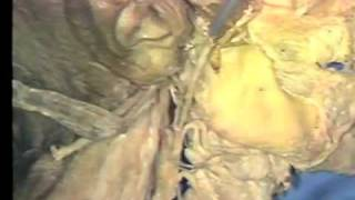 Gross Anatomy: External Carotid Artery -  Retrostyloid Region