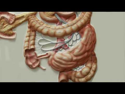Лечение рака толстой кишки в Израиле, клиника Ассута