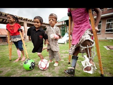 Helping Children Walk, Run & Thrive: Child Amputees & Children with Limb Disabilities