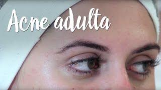 Da limpeza à maquiagem: produtos para controlar a acne adulta