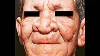 Leprosy - Signs and Symptoms