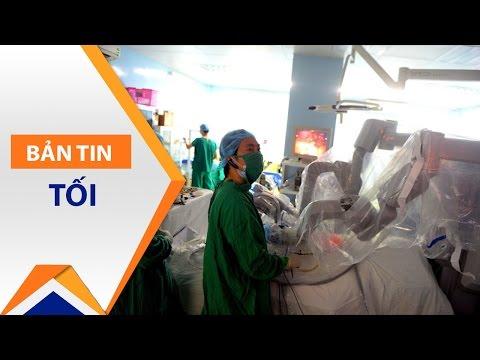 Sử dụng tay robot phẫu thuật ung thư dạ dày | VTC - Thời lượng: 88 giây.