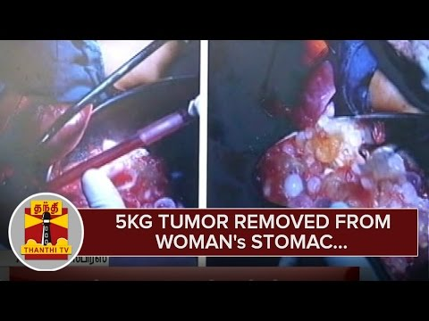 5kg-Tumor-removed-from-Womans-Stomac-in-a-Successful-Operation--Thanthi-TV