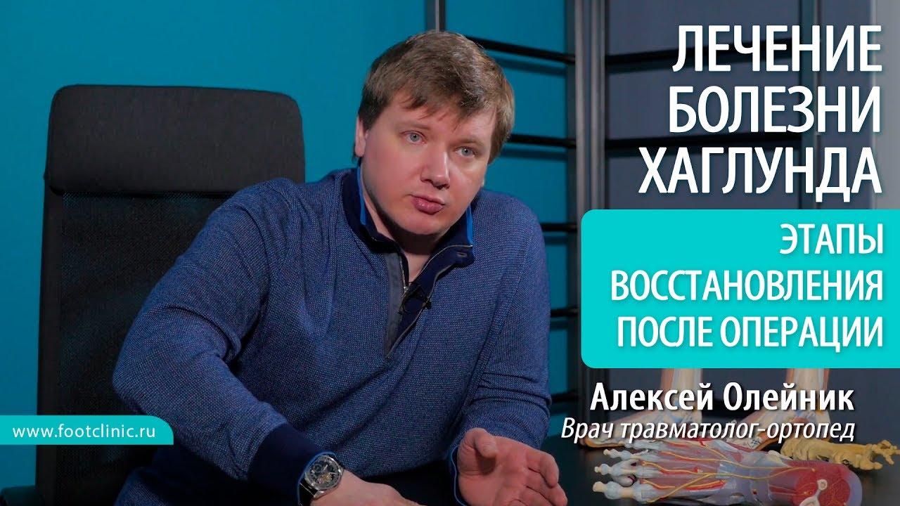 Этапы реабилитации после операции при болезни Хаглунда - хирургия стопы Алексея Олейника