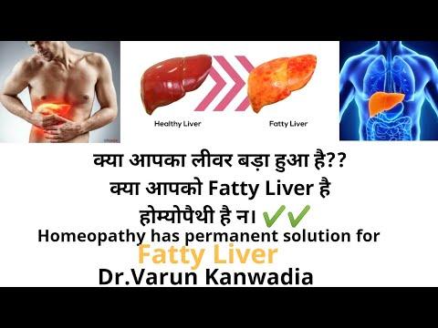 लीवर पर ज्यादा चर्बी को होम्योपथी से करे जड़ से खत्म । Homeopathy Treatment of Fatty Liver