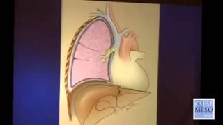 Malignant Pleural Mesothelioma Treatment ~ Dr  Raja Flores