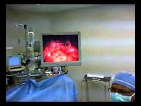 Part 1: Operative Video; Tips and Tricks-Mini-Gastric Bypass