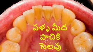 How To Remove Teeth Plaque & Tartar With Oil Pulling