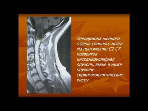 Презентация. Клиника и диагностика опухолей спинного мозга