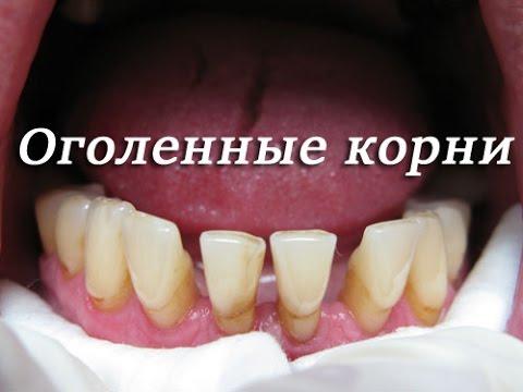Как лечится рецессия десны. Что делать если оголились корни в зубах  Стоматология