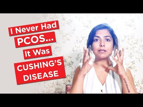 I Never Had PCOS... It Was Cushing's Disease