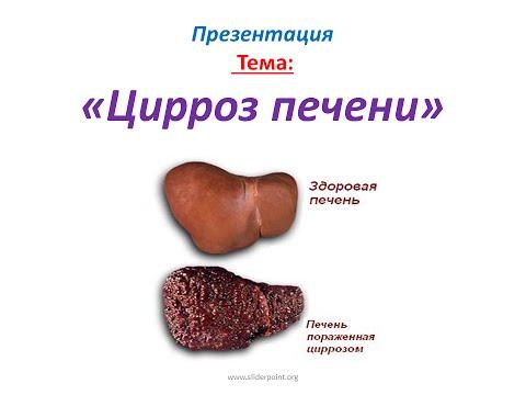 Цирроз печени