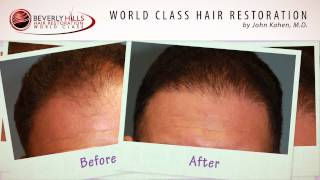 John Kahen MD Hair Tranplant Surgery- Before and After Photos