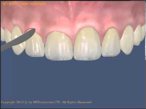 Dişeti seviyelerini düzeltme Gingivektomi