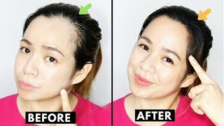 Video How To Naturally Grow Back Thinning Hairline & Cover up Receding Hairline-Beautyklove MP3, 3GP, MP4, WEBM, AVI, FLV November 2018