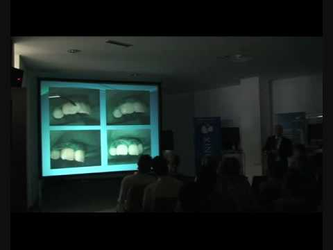 (part 6) Prof. Bozidar Pavelic – Ozone in Dentistry — Clinical