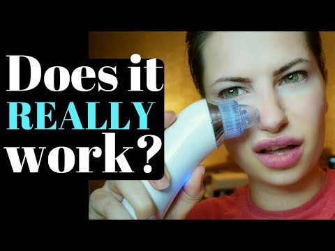 💎 Pore Vacuum Cleaner 💎 Black Heads Remover Test & Review 💎