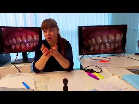 Хирургическое лечение рецессий десны в области зубов и имплантатов. Часть 10