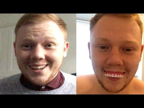 19-Year-Old Orders Veneers That Look Like Halloween Costume Teeth