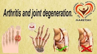 Arthritis and Joint Degeneration. Rehabilitation Therapy of the Body.
