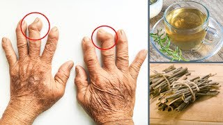 Some homemade remedies made with easy to find natural plants are excellent economical choices to treat arthritis. They're usually able to decrease inflammation in the joint and helping relieve pain.Therefore, these homemade remedies should never be used as a substitute for the treatment prescribed by a doctor. They only help to alleviate the pain or prevent it from recurring. 1. Homemade rosemary remedyIngredients:- 1 teaspoon of fresh or dried rosemary leaves;- 250 ml of boiling water; Instructions:Add the rosemary leaves to a cup of boiling water and let it steep for 10 minutes. Then strain and drink the tea while it's still warm. Repeat 2 to 4 times a day.2. Homemade remedy with willow and meadowsweet (or meadow wort)Ingredients:- 1 glass of water;- 1 tablespoon of willow bark;- 1 tablespoon of meadowsweet; Instructions:Put all the ingredients in a pan and boil for approximately 5 minutes. Place a lid on the pan, let it cool. When it's cooled enough, strain it, and then drink it. It's recommended to drink 1 cup in the morning and another in the evening.Not only can you these home remedies daily, but you can even massage the affected joint, using almond oil.Resource(s):https://www.ncbi.nlm.nih.gov/pmc/articles/PMC4877453/http://www.arthritisresearchuk.org/arthritis-information/complementary-and-alternative-medicines/cam-report/complementary-medicines-for-rheumatoid-arthritis/willow-bark/trials-for-ra.aspxhttp://scu.edu.au/scps/index.php/118/http://www.webmd.com/vitamins-supplements/ingredientmono-108-meadowsweet.aspx?activeingredientid=108&activeingredientname=meadowsweetDisclaimer: The materials and the information contained on Natural Cures channel are provided for general and educational purposes only and do not constitute any legal, medical or other professional advice on any subject matter. These statements have not been evaluated by the FDA and are not intended to diagnose, treat or cure any disease. Always seek the advice of your physician or other qualifie