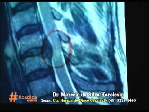 Cirgurgia de Hernia de Disco Cervical