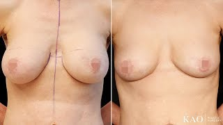 Cancel  Save changes Breast Explantation with Internal Molding and Suspension