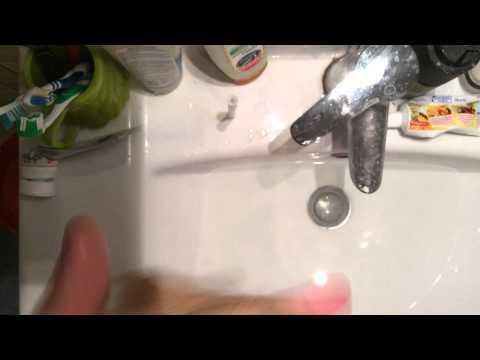 Удаление бородавки в домашних условиях