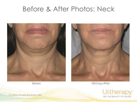 Ulthera Non Surgical Facelift at Virginia Institute Of Plastic Surgery Presentation