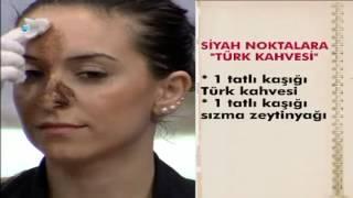 Video Siyah noktalara Türk Kahvesi maskesi MP3, 3GP, MP4, WEBM, AVI, FLV September 2018