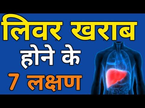 लिवर खराब होने के 7 लक्षण /Liver kharab hone ke 7 lakshan kya hain /Liver Damage Symptoms hindi