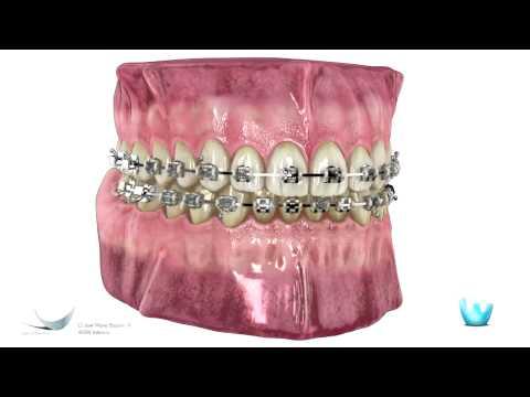 La Ortodoncia