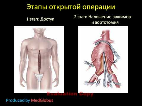Аневризма брюшной аорты лечение и диагностика