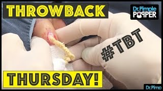 We've decided to bring back some of my Lost Dr Pimple Popper Footage, those videos that I filmed way back when, over two years ago!  Many of this footage is buried in other videos or have been deleted from our YouTube Channel at some point or another.  We have looked over this Lost Footage and only chosen the Best of the Best!Thank you, popaholics... I love ya!STo buy your own Official Dr. Pimple Popper Comedone Extractor, click here:http://www.drpimplepopper.com/shopTo learn more about my skincare line - SLMD Skincare - click here:www.slmdskincare.comSubscribe to my Dermatology educational channel, Dr Pimple Popper University!  Link is here: https://www.youtube.com/channel/UCvaD01Jb_ruxsAcVqVmTHzQFor more content, exclusive content, and of course to get more Dr. Pimple Popper schwag, visit us at www.drpimplepopper.com!Instagram:       @DrPimplePopper for 24/7 pops      @DrSandraLee for my work, my life, my popsFacebook: facebook.com/DrPimplePopperTwitter: @SandraLeeMDSnapchat: drpimplepopperPeriscope: Dr. Sandra LeeYou can watch my TV appearances here: https://www.youtube.com/channel/UCOixDRVQAsKe4STSuWU8U0QThis video may contain dermatologic surgical and/or procedural content. The content seen in this video is provided only for medical education purposes and is not intended to be a substitute for professional medical advice, diagnosis, or treatment.