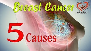 Breast Cancer - 5 Causes.