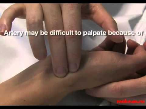 Пункция лучевой артерии на газы крови