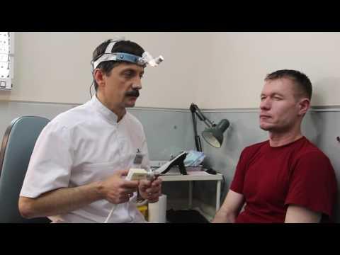 """Про нафтизиновых """"наркоманов"""" и искривление перегородки носа"""