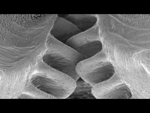 Gears - Previously believed to be only man-made, a natural example of a functioning gear mechanism has been discovered in a common insect - the plant-hopper Issus - ...