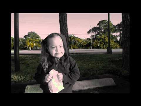 Watch videoSíndrome de Down: la humanidad los hace iguales