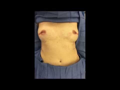 Replacement of bilateral ruptured saline implants for breast reconstruction for breast cancer.