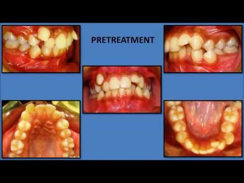 orthodontic treatment of crooked teeth by Dr.Surendra